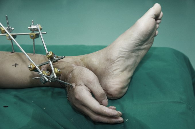 """Xiao Wei lost his right hand in an accident at work but could not have it reattached to his arm right away. Instead, the hand was kept alive by stitching it to Mr Wei's left ankle and """"borrowing"""" a blood supply from arteries in the leg"""