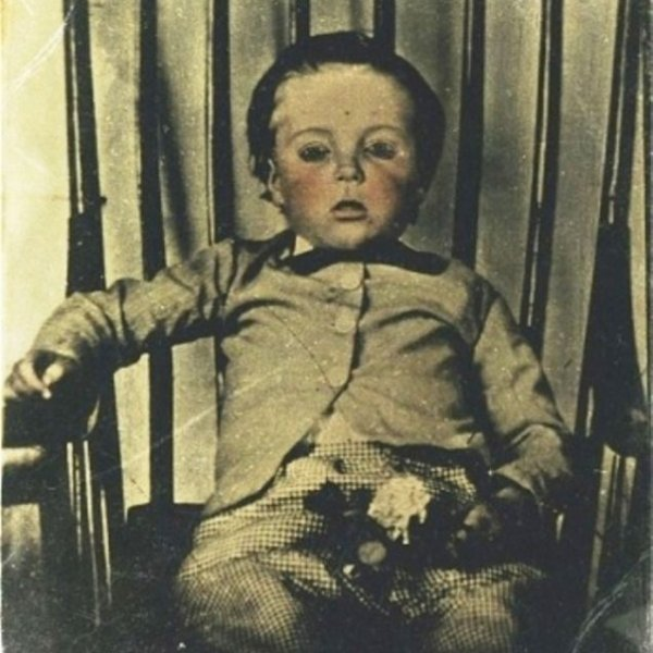 Post Mortem Child Sick Photo