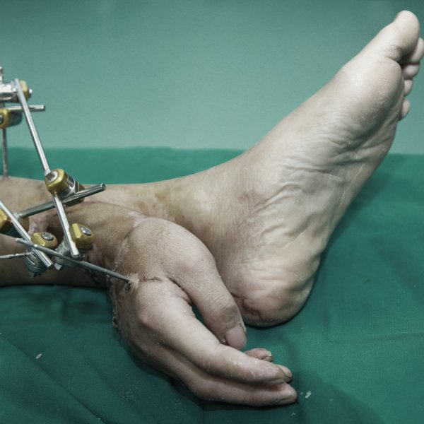 "Xiao Wei lost his right hand in an accident at work but could not have it reattached to his arm right away. Instead, the hand was kept alive by stitching it to Mr Wei's left ankle and ""borrowing"" a blood supply from arteries in the leg"