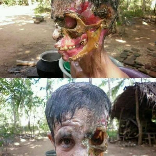 disturbing destroyed face